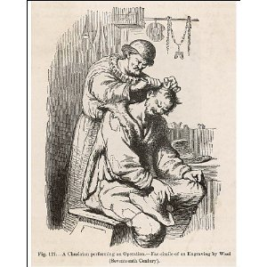 barbersurgeon